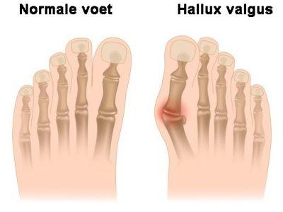 Wat is een hallux valgus & hoe kan ik de pijn verminderen?