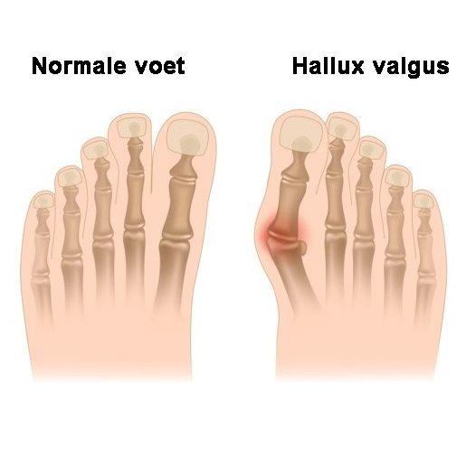 wat-is-hallux-valgus_penninx